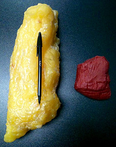 Kg of fat vs kg of muscle
